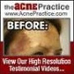 The Acne Practice Coupon Codes & Deals